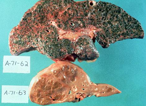 Liver Changes in Hepatitis Hepatitis Small Liver